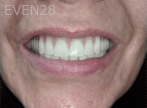 Johnny-Nigoghosian-Implant-Supported-Dentures-after-10
