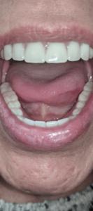 Johnnu-Nigoghosian-Implant-Supported-Dentures-after-10b