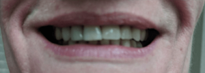Johnny-Nigoghosian-Implant-Supported-Dentures-after-11