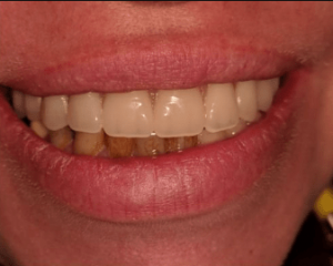 Johnny-Nigoghosian-Implant-Supported-Dentures-after-12