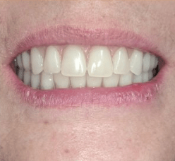 Johnny-Nigoghosian-Implant-Supported-Dentures-after-14