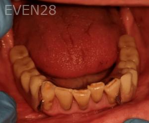 Johnnu-Nigoghosian-Implant-Supported-Dentures-after-15