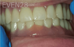 Johnny-Nigoghosian-Implant-Supported-Dentures-after-16