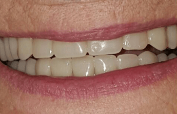 Johnny-Nigoghosian-Implant-Supported-Dentures-after-16b