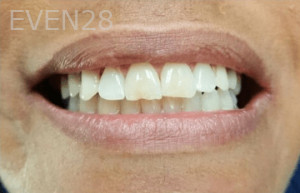 Johnny-Nigoghosian-Implant-Supported-Dentures-after-17b