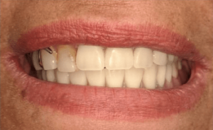 Johnny-Nigoghosian-Implant-Supported-Dentures-after-2