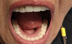 Johnny-Nigoghosian-Implant-Supported-Dentures-after-2b