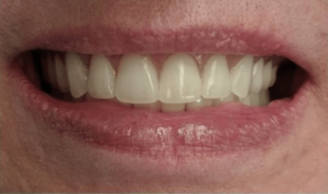 Johnnu-Nigoghosian-Implant-Supported-Dentures-after-3