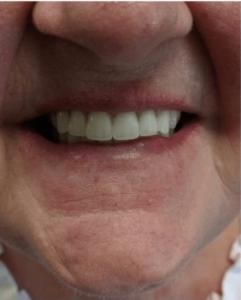 Johnnu-Nigoghosian-Implant-Supported-Dentures-after-4