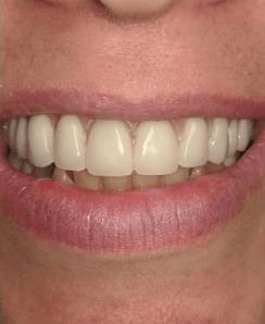 Johnnu-Nigoghosian-Implant-Supported-Dentures-after-5