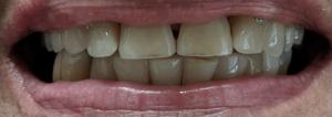Johnnu-Nigoghosian-Implant-Supported-Dentures-after-6