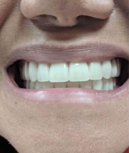 Johnnu-Nigoghosian-Implant-Supported-Dentures-after-7