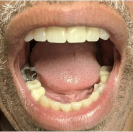 Johnny-Nigoghosian-Implant-Supported-Dentures-after-8
