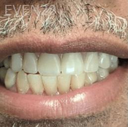 Johnnu-Nigoghosian-Implant-Supported-Dentures-after-8b