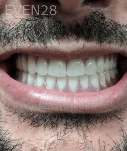 Johnny-Nigoghosian-Implant-Supported-Dentures-after-9