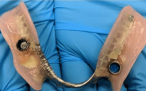 Johnny-Nigoghosian-Implant-Supported-Dentures-before-11