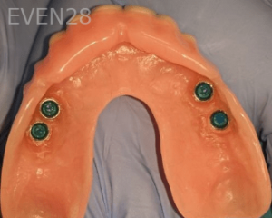 Johnny-Nigoghosian-Implant-Supported-Dentures-before-12b