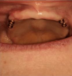 Johnnu-Nigoghosian-Implant-Supported-Dentures-before-14b