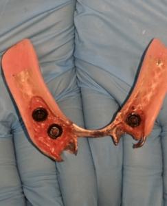 Johnnu-Nigoghosian-Implant-Supported-Dentures-before-15b