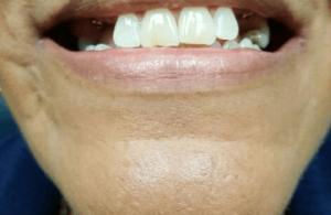 Johnnu-Nigoghosian-Implant-Supported-Dentures-before-17c