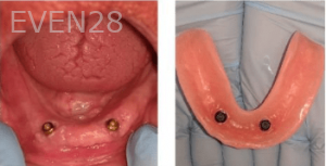Johnny-Nigoghosian-Implant-Supported-Dentures-before-2b