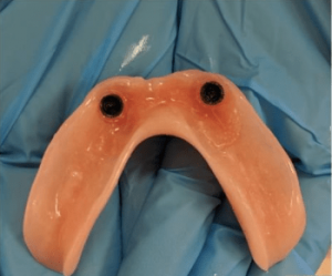 Johnnu-Nigoghosian-Implant-Supported-Dentures-before-4