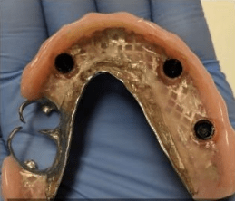 Johnny-Nigoghosian-Implant-Supported-Dentures-before-8b