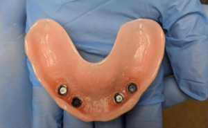 Johnny-Nigoghosian-Implant-Supported-Dentures-before-9