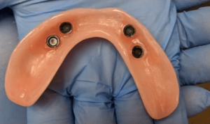 Johnny-Nigoghosian-Implant-Supported-Dentures-before-9b