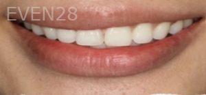 Johnathan-Lee-Dental-Bonding-after-1