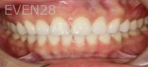 Johnathan-Lee-Dental-Bonding-after-1b