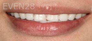 Johnathan-Lee-Dental-Bonding-before-1