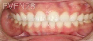 Johnathan-Lee-Dental-Bonding-before-1b