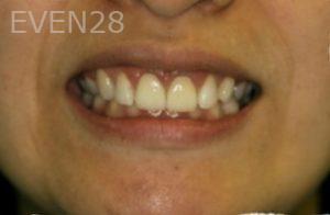 Johnathan-Lee-Dental-Crowns-after-1