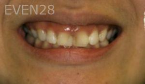 Johnathan-Lee-Dental-Crowns-before-1