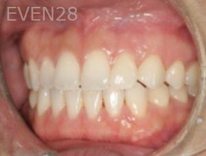 Johnathan-Lee-Invisalign-Clear-Aligners-after-1