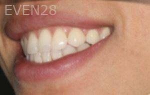 Johnathan-Lee-Invisalign-Clear-Aligners-after-1b