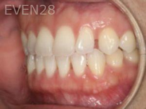 Johnathan-Lee-Invisalign-Clear-Aligners-before-1