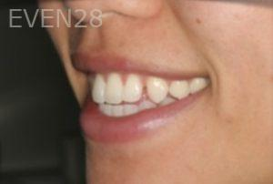 Johnathan-Lee-Invisalign-Clear-Aligners-before-1b