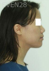Jonathan-Lee-Orthodontic-Braces-after-1