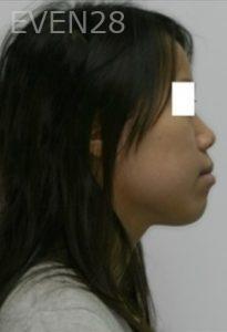 Johnathan-Lee-Orthodontic-Braces-before-1