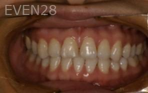 Johnathan-Lee-Porcelain-Veneers-before-2