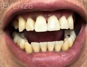 Julio-Terra-Dental-Bonding-after-1