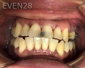 Julio-Terra-Dental-Bonding-before-1