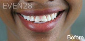 Julio-Terra-Smile-Makeover-before-1