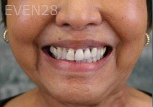 Julio-Terra-Smile-Makeover-before-2