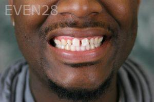 Julio-Terra-Smile-Makeover-before-3