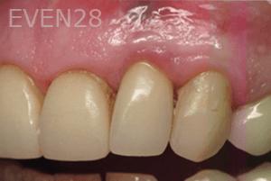 Justin-Braga-Peri-Implantitis-after-1