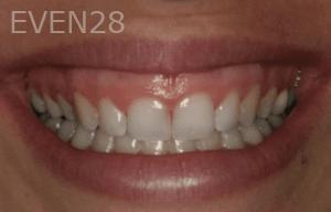 Justin-Braga-Periodontal-Plastic-Surgery-before-1b