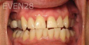 Katherine-Toubian-Dental-Bonding-after-1